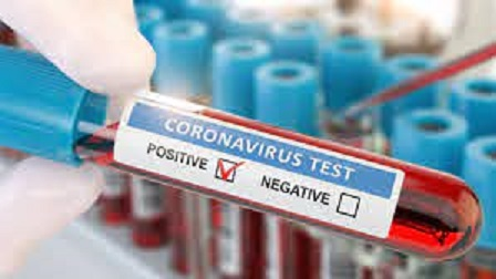 Suspect who forged Covid-19 tests arrested